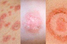 hogyan gyógyult meg a pikkelysömör cianokobalamin pikkelysömör kezelésére
