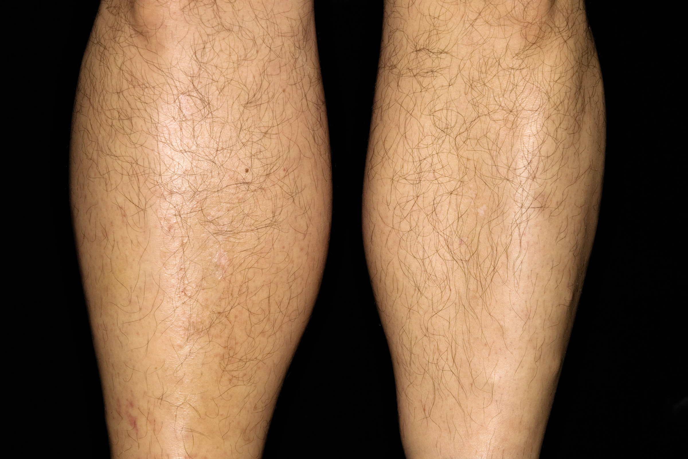 pikkelysömör a lábakon tünetek és kezelés hogyan lehet pikkelysömör gyógyítani a fejbőrön