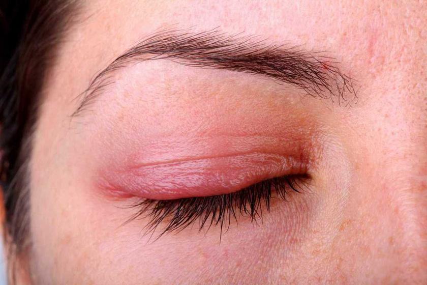 a betegség okai és a pikkelysömör kezelése miért vörös foltok a fejbőrön
