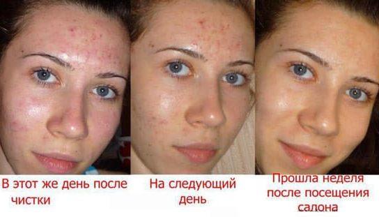 vörös foltok az arc mechanikai tisztítása után pikkelysömör kezelése gyógynövényes infúzióval