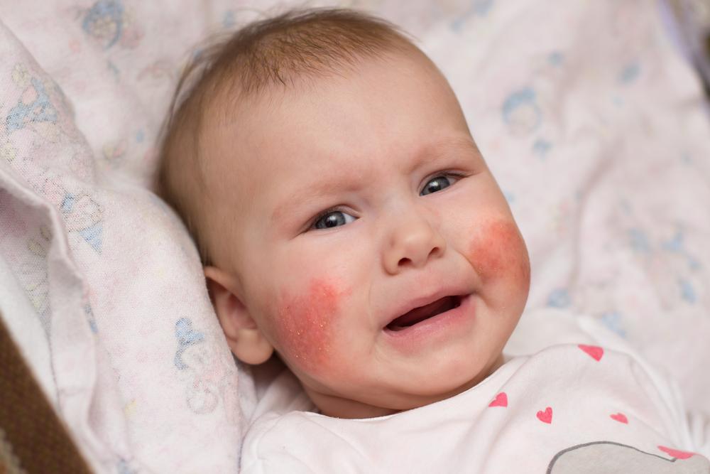 vörös foltok az arcon és a fejbőrön)