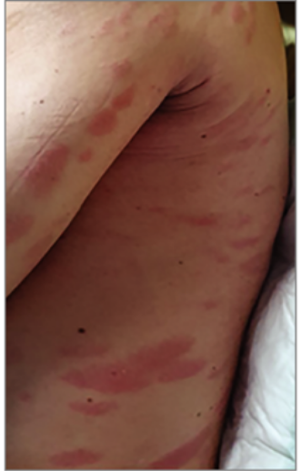 vörös foltok jelentek meg a hátán és viszkető fotók