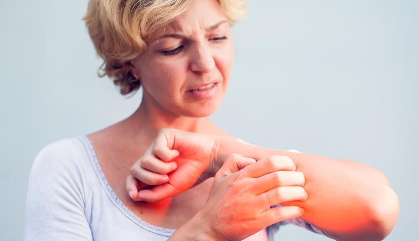 Piros foltok a felnőtt testén fotóval: a nyakon, az arcon, a karokon és a lábakon - Moles