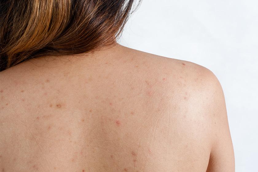 Milyen betegségre utalnak a vörös foltok?