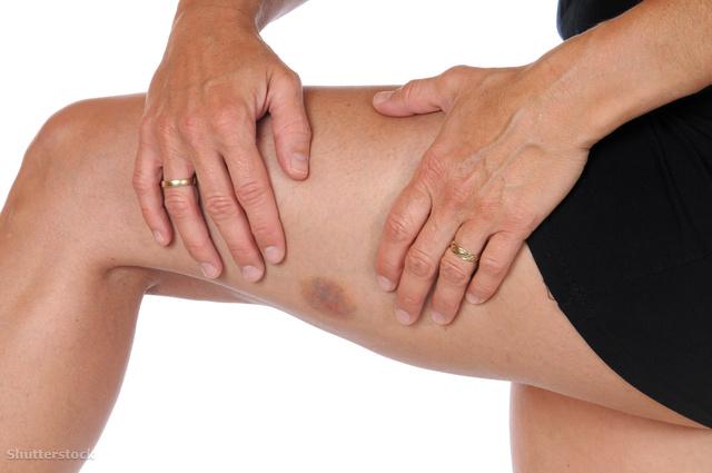 vörös és kék foltok a lábakon vörös folt a lábán viszketés diagnózis