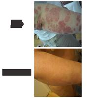 Volga régió központja pikkelysömör és vitiligo kezelésére