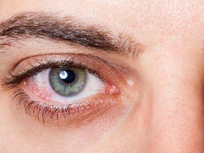 Menopauza, szeméremtest viszketés