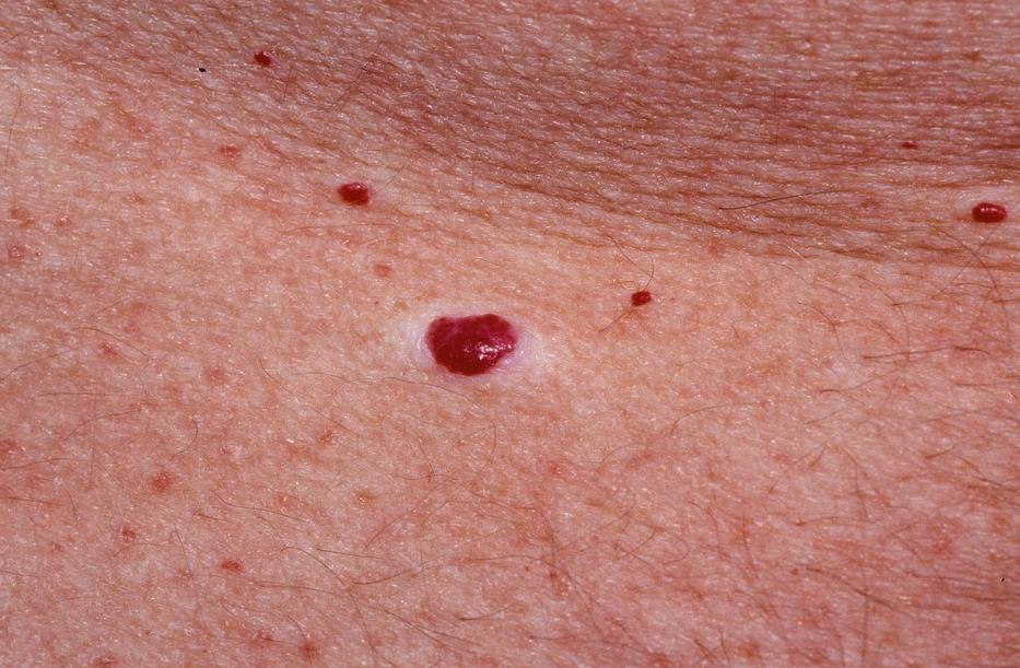 vörös foltok a bőrön hasnyálmirigy-gyulladással)