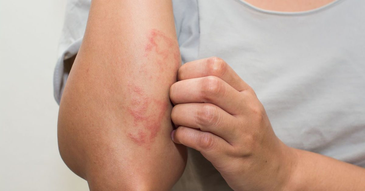 Gombás bőr - Bőrgyógyászat