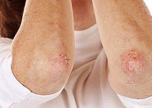 gyakori exudatív pikkelysömör kezelés