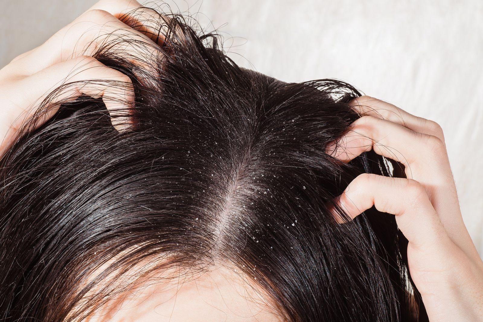 vörös foltok a fején és a korpásodás kezelése