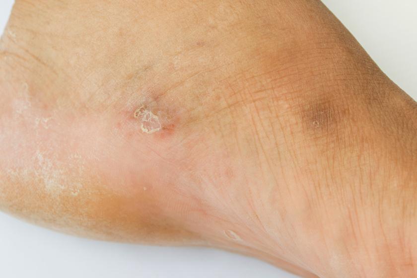 a lábakon vörös foltokat viszkető tünetek)