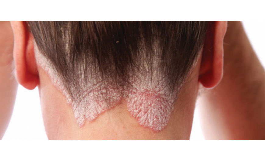 Allergia, ekcéma, pikkelysömör kezelése   Phytokert