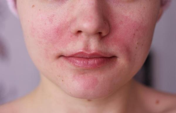a bőrt fürdés után vörös foltok borítják)