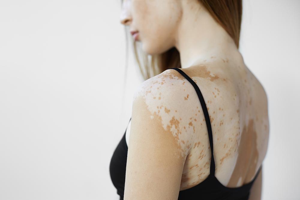 Excimer - pigmenthiány kezelés - Szegi Medical Center