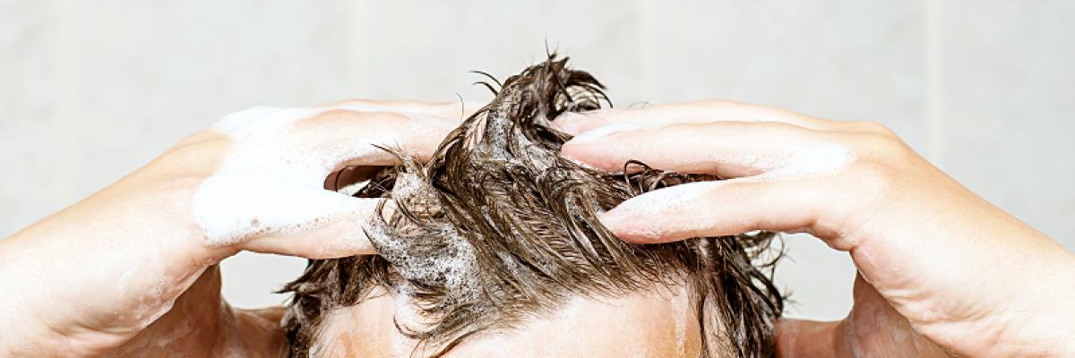 Gyógyítottam a fejbőr pikkelysömörét
