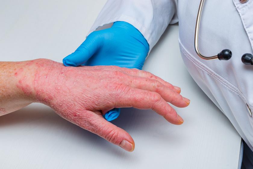 hogyan lehet megszabadulni a pikkelysömör 2 hétig - A legjobb psoriasis krém