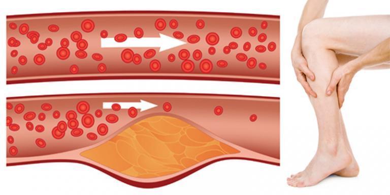 hemlock kezelés pikkelysömörhöz száraz vörös foltok a felnőttek lábán