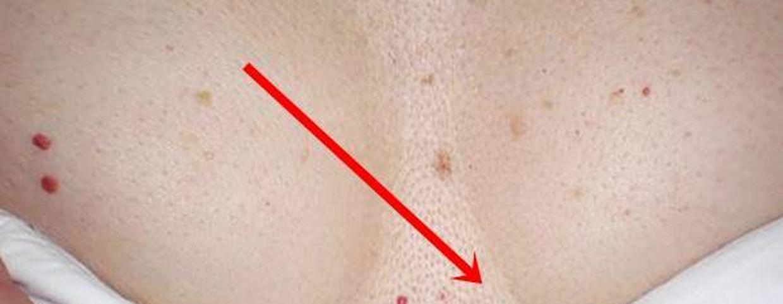 vörös foltok jelentek meg a mellkas hasán