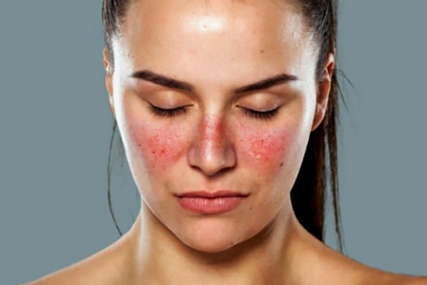 vörös nedves foltok jelentek meg az arcon