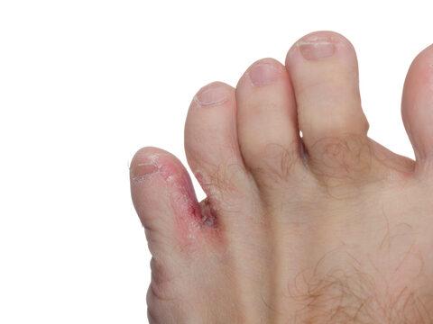 vörös foltok a lábujjak között a lábujjak között)