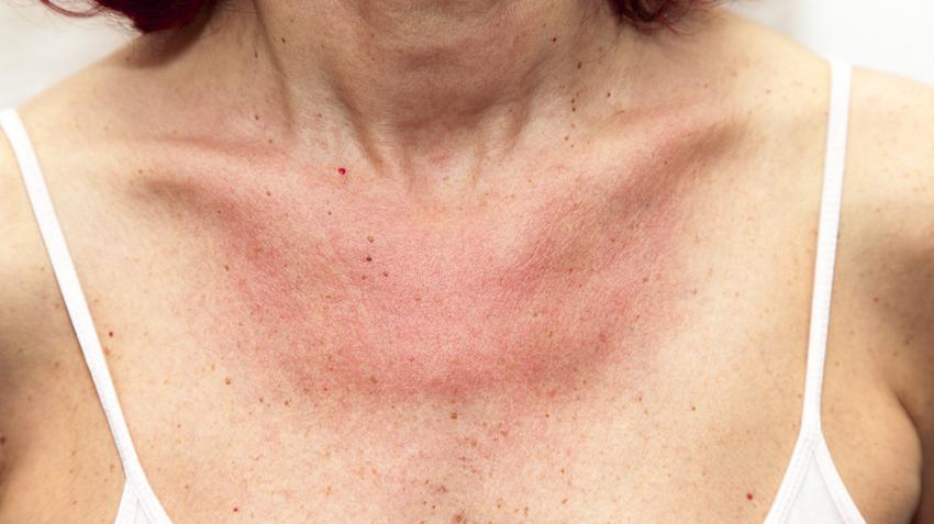 vörös foltok a nyakon és a fején, valamint viszketnek