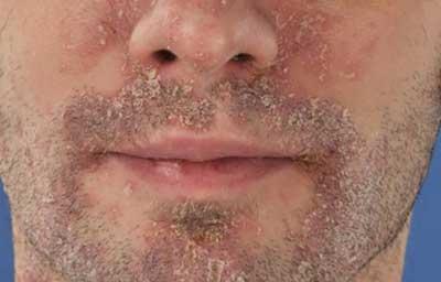 pikkelysömör az arcon készítmények kenőcs sinaflan)