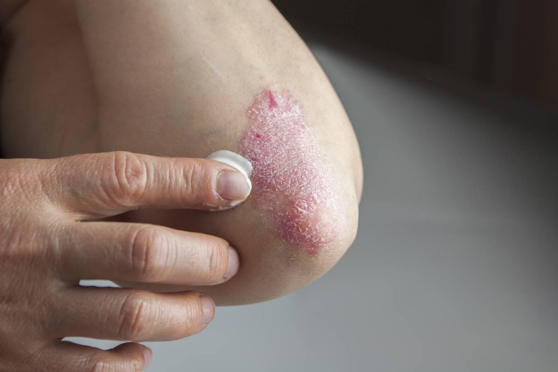 5 dolog, ami rontja a pikkelysömör tüneteit