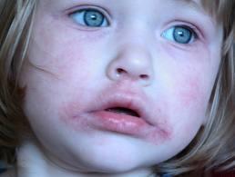 vörös foltok a száj körül hogyan kell kezelni