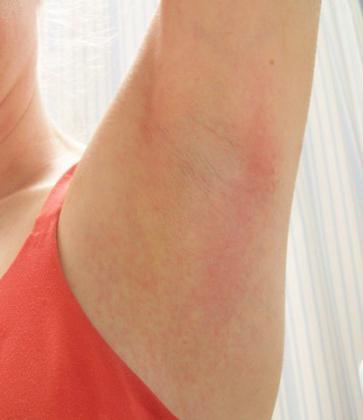 hogyan lehet eltávolítani a hónalj alatti vörös foltokat)