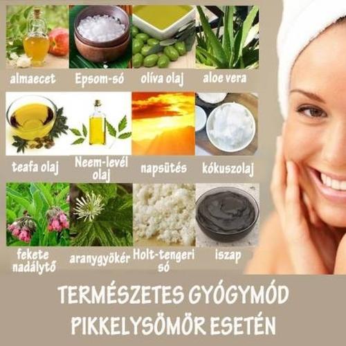 természetes gyógymód a pikkelysömörhöz)