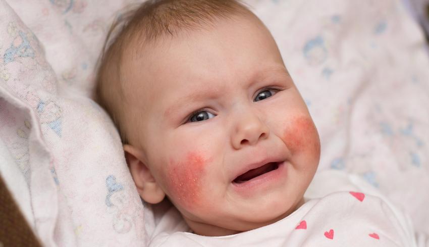 vörös foltok az arcon és a hámló bőrön)