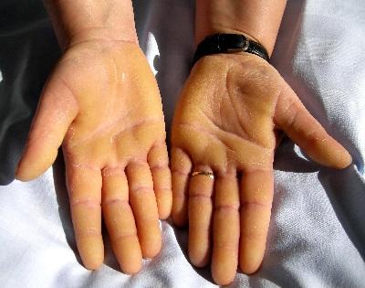 piros foltok a hüvelykujj jobb oldalán