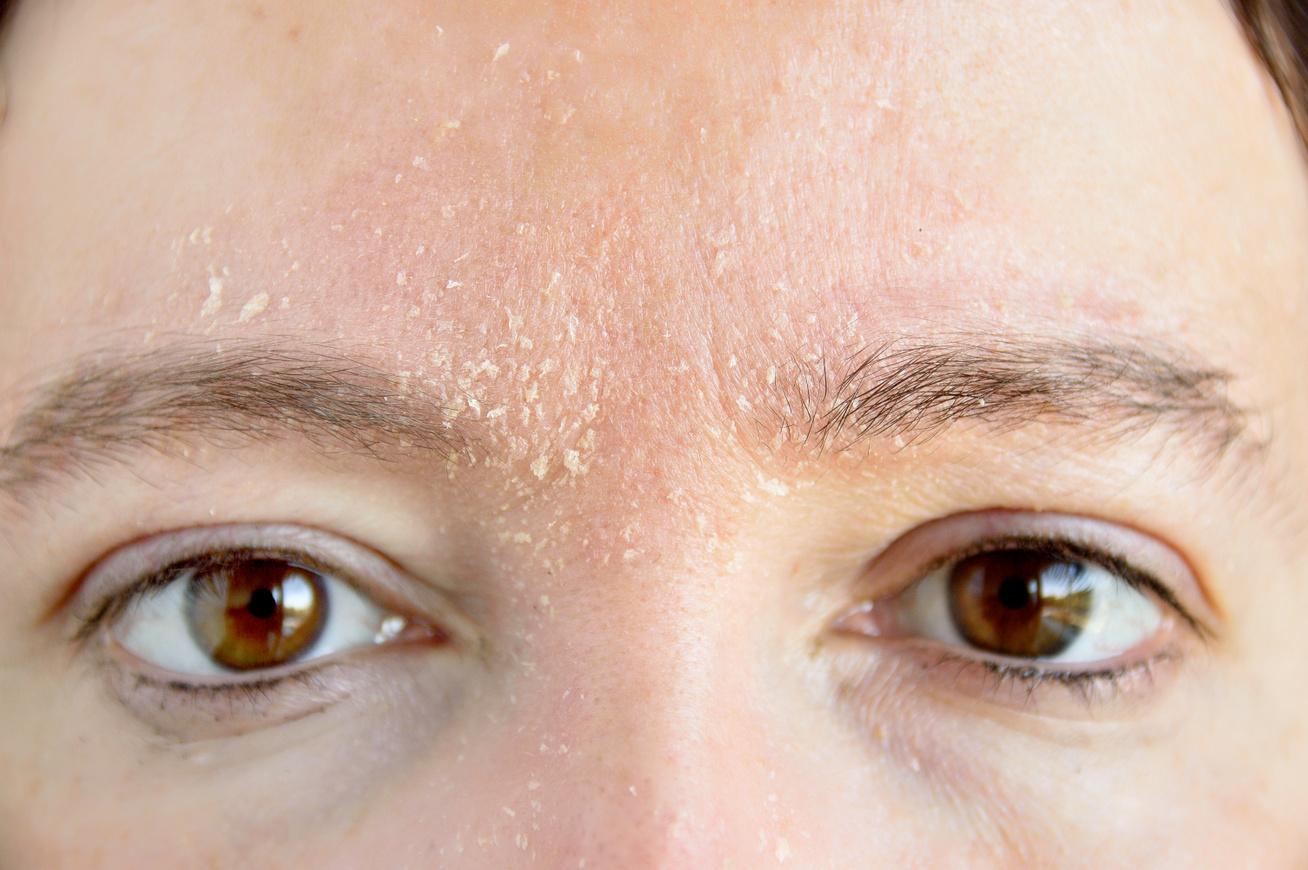 a bőr kiszárad és vörös foltok jelennek meg