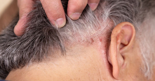 vörös folt az arcon a száj közelében high-tech pikkelysömör kezelése