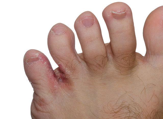 vörös foltok a lábujjak között a lábujjak között hogyan kezeljük a kar pikkelysömörét