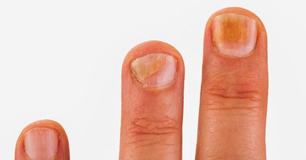 a lábán piros foltok fájnak pikkelysömör kezelése gyógynövényekkel