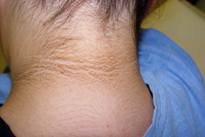a vörös nyak kiemelkedik a nyakon