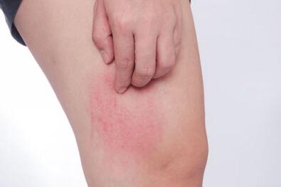 lúgos pikkelysömör kezelése seborrhea pikkelysömör fejbőr kezelése