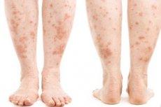 vörös foltok hámozása a lábakon)