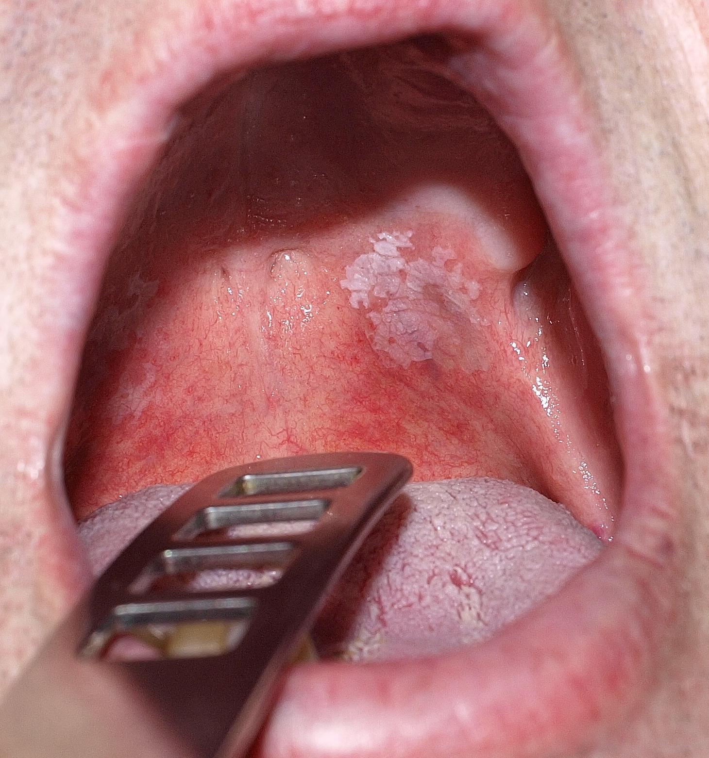 A szájüregi daganatok korai tünetei