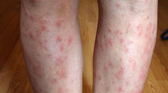a bőrt vörös foltok és pelyhek borítják)