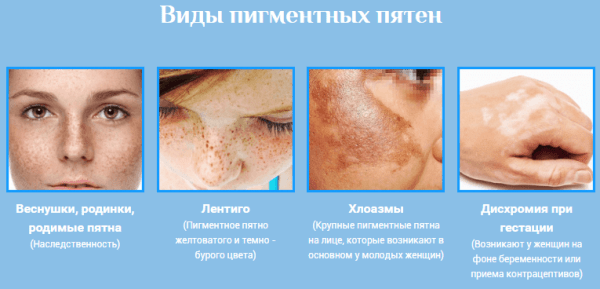 hogyan lehet eltávolítani a vörös foltokat az arckrémen)