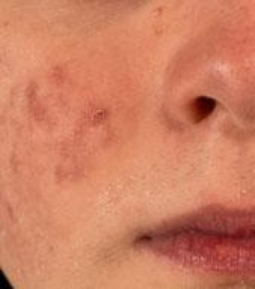 az arcon foltok vörösek az orr közelében)