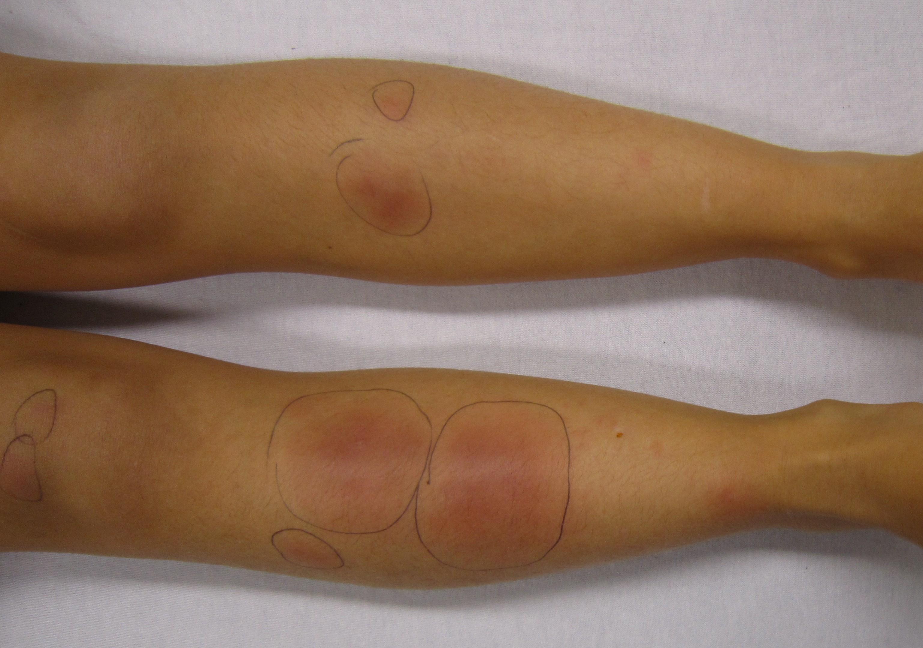 a lábát megfésülték és vörös foltok jelentek meg