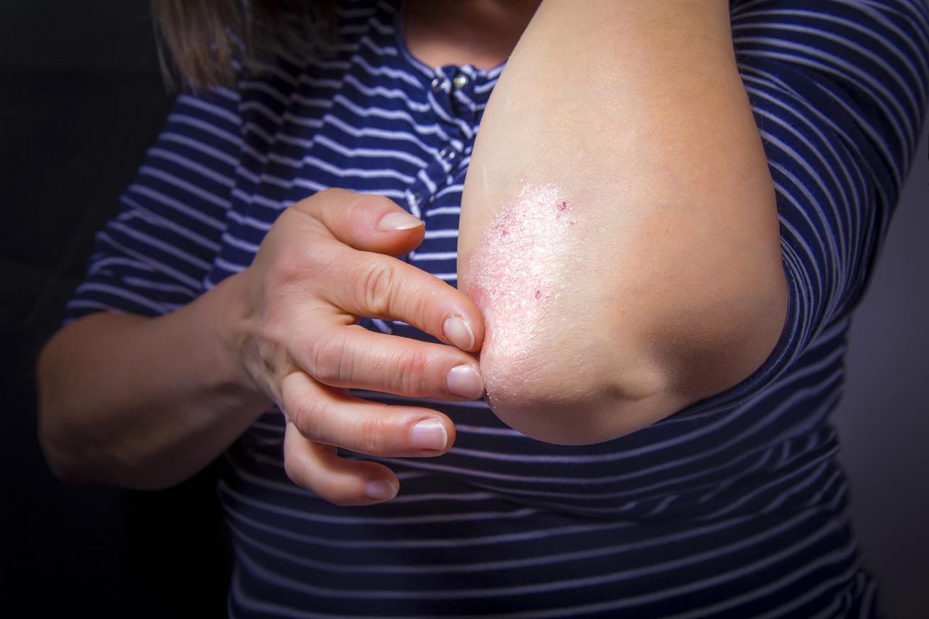 vörös foltokkal borított arc és viszketés kezelés pikkelysömör gyógyítható badamival