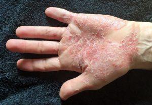 Seborrheikus dermatitis és korpásodás