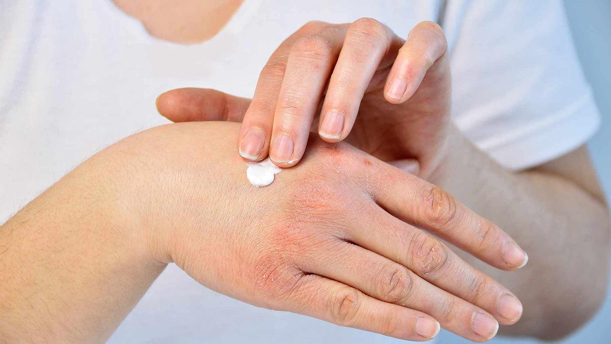 hogyan lehet gyógyítani a pikkelysömör bőrbetegségét)