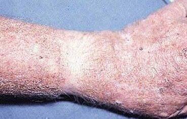 vörös foltok majd lehámlanak a bőrről zuzmó vagy pikkelysömör kezelése
