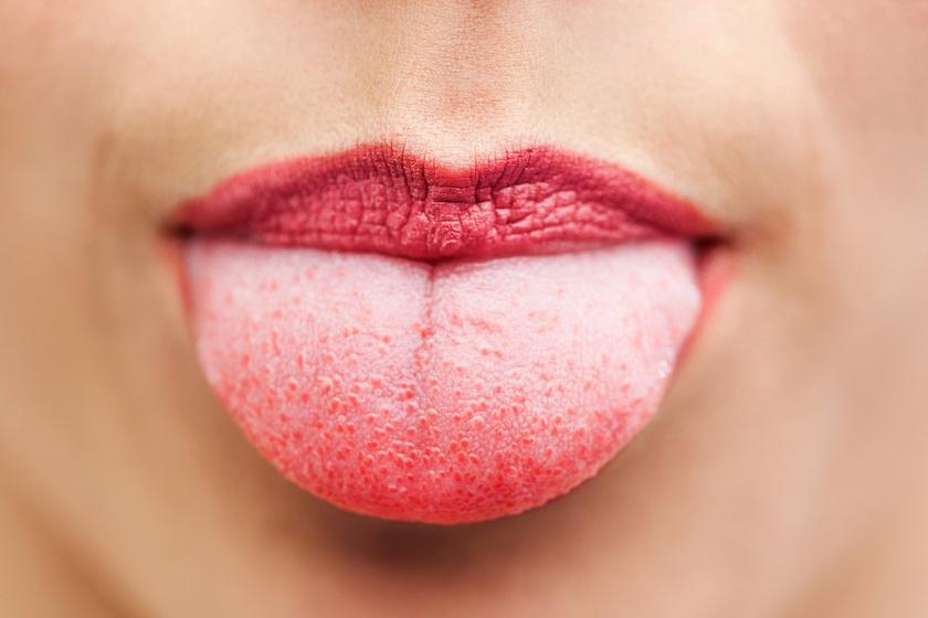 vörös foltok jelentek meg a szájban, mint kezelni
